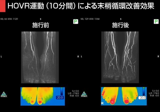 「MRIを用いた血管撮影(MRA)」と、「サーモグラフィ」
