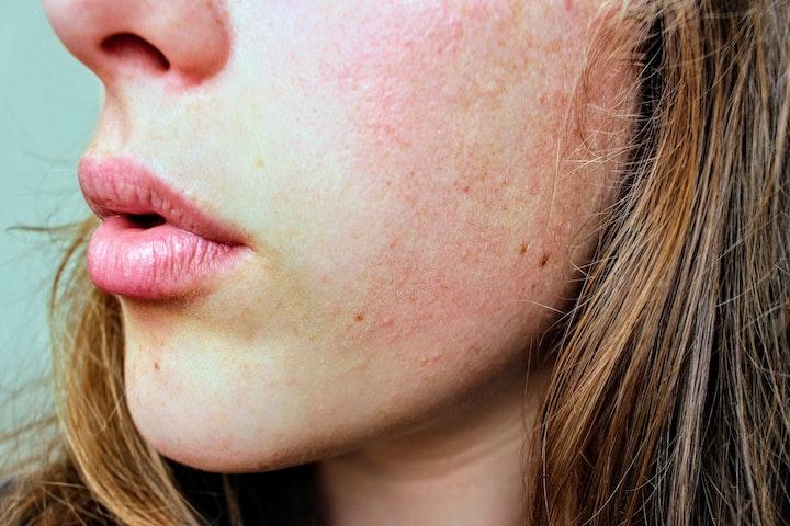 乾燥肌の女性の写真