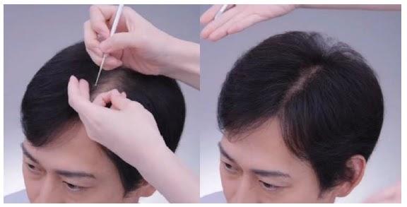 剤 ラボモ 育毛